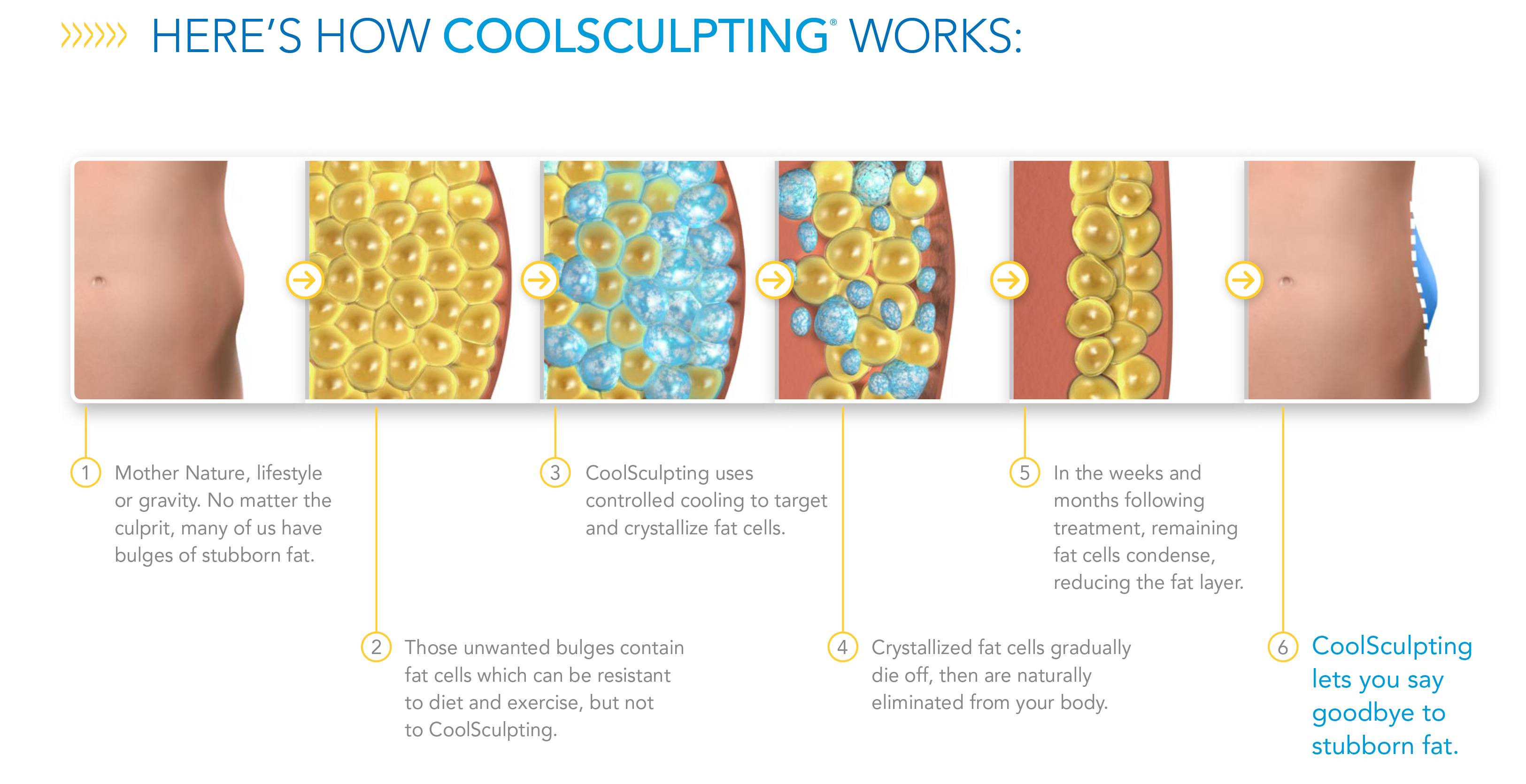 CoolSculpting Fat Removal Sydney Bella Vista | Dr Gavin