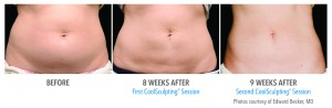 17 weeks after CoolSculpting to the abdomen