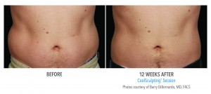 12 weeks after CoolSculpting male abdomen