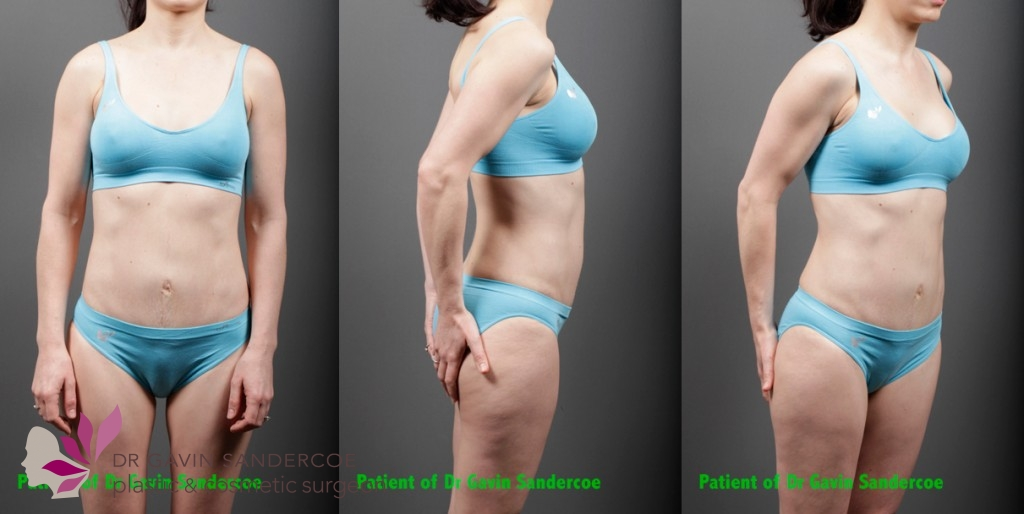 Patient A 1 year post abdominoplasty