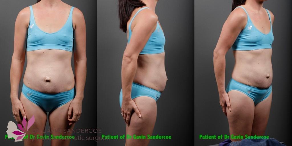 Patient 1 Preop Abdominoplasty