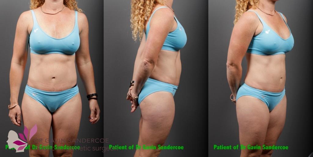 Patient B: 1 year post abdominoplasty