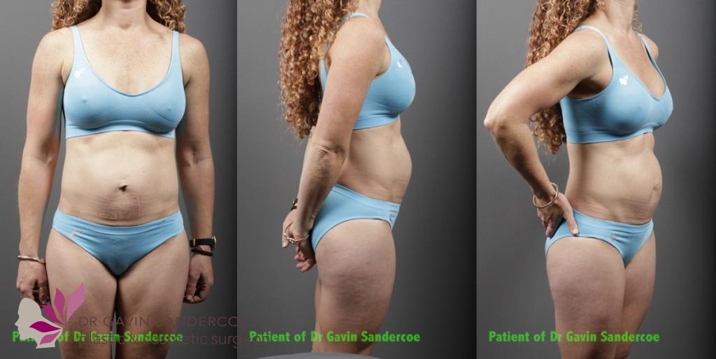 Patient B: Pre Abdominoplasty